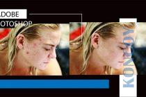 2 Cara Mudah Menghilangkan Jerawat Adobe Photoshop